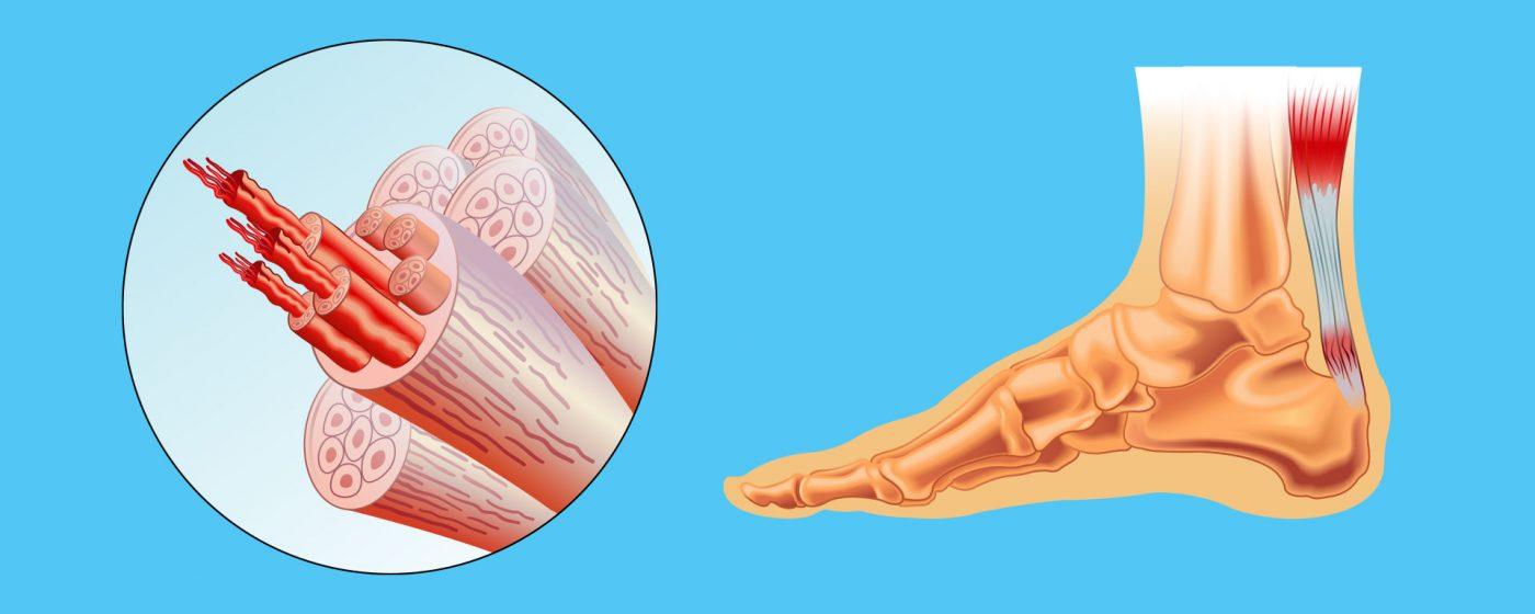 Aşil tendonu kopması